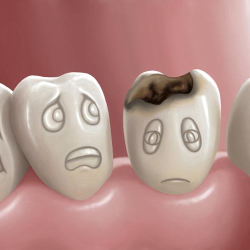 Как да се предпазим от зъбен кариес - Дентален център Фармадент