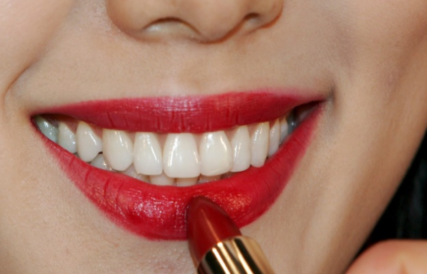 Бели и здрави зъби - Дентален център Варна