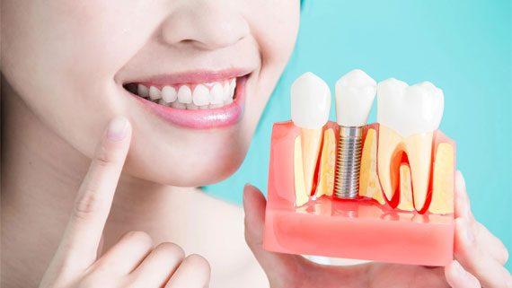 Зъбният имплант