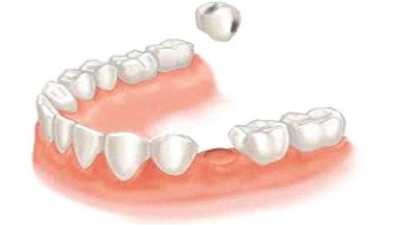 екстракция на зъб